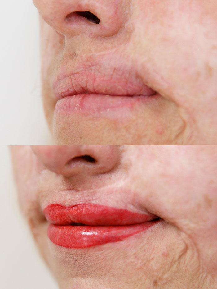 pigmentacja medyczna ust po oparzeniu