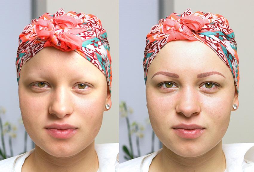 Pigmentacja medyczna w Polsce